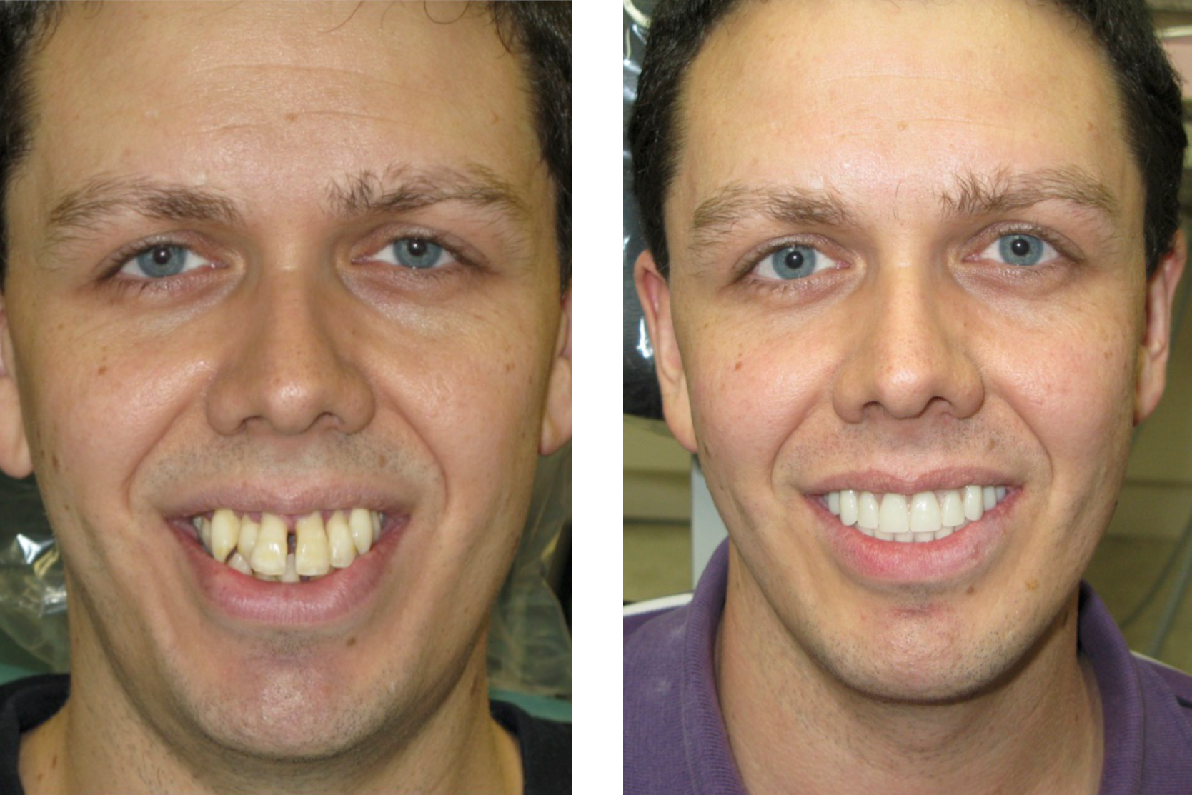 all-on-4 dental implants after